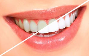 teethwhiteninghalf