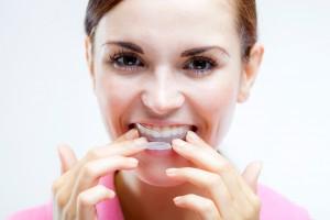 teethwhiteningtrays